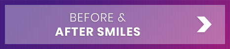 Before and After Kita Orthodontics North Little Rock Jacksonville Maumelle AR